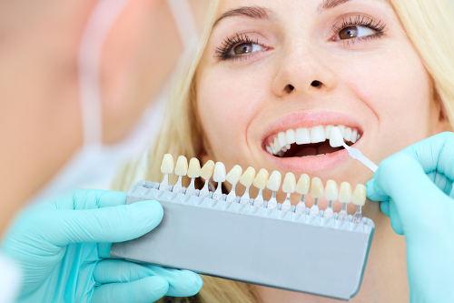 Tandblekning på Tandvårdsteamet i Höganäs